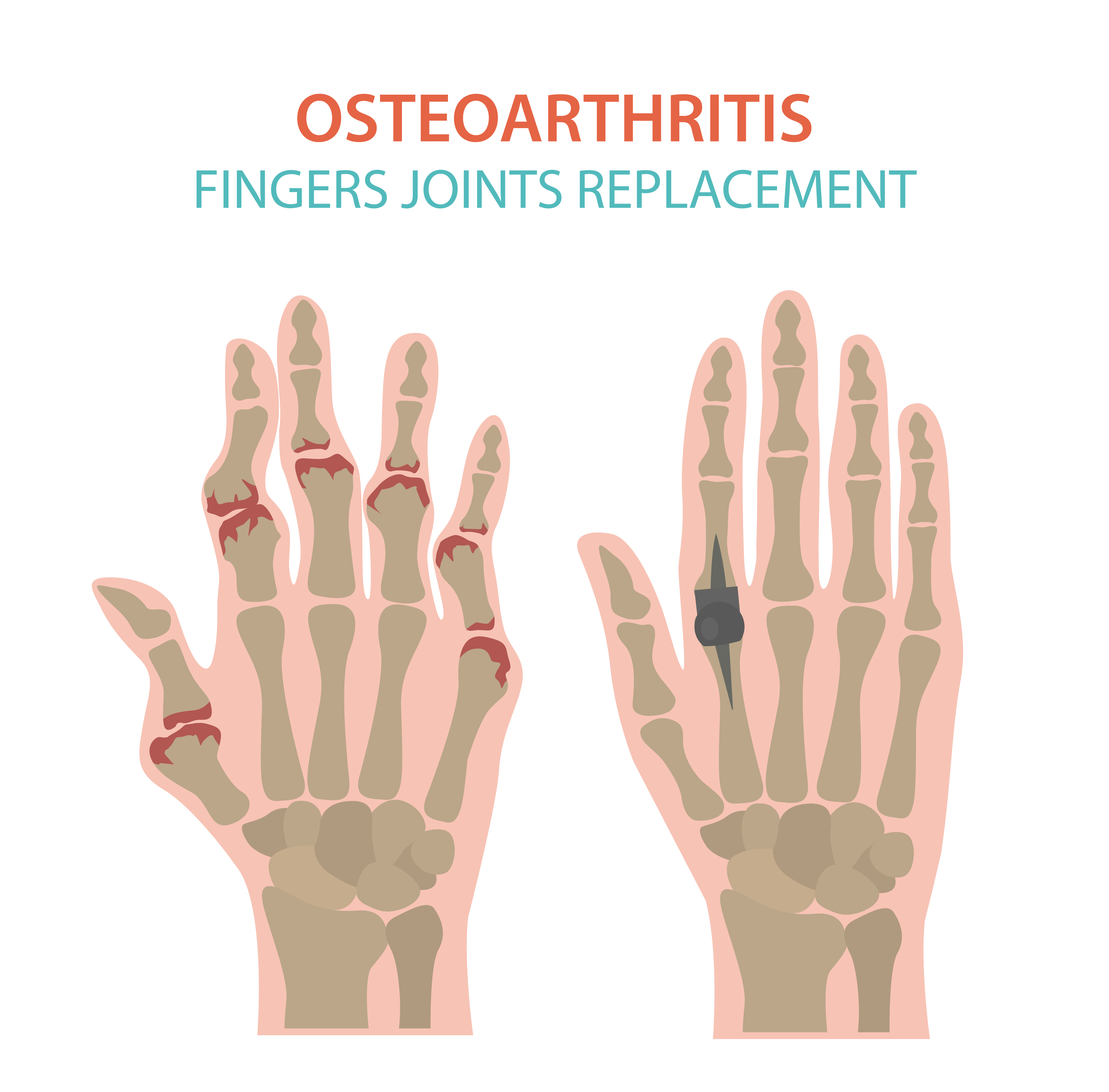 Arthritis, osteoarthritis medical infographic design. Joint repl